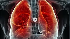 Lungenemphysem, Volle Kanne
